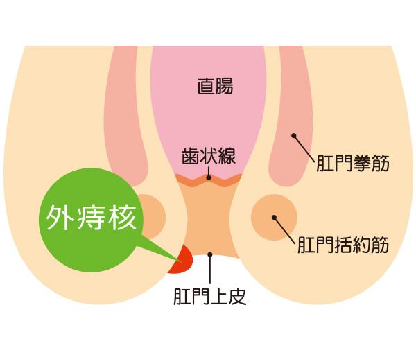 いぼ痔(外痔核)
